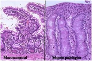 diagnostico2-celiaquia-300x198 Aunque ahora no seas celíaco, podrías llegar a serlo