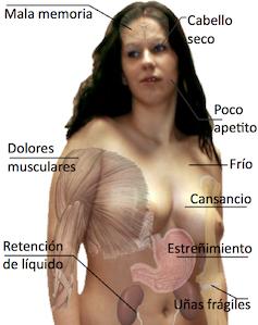 Hipotiroidismo1