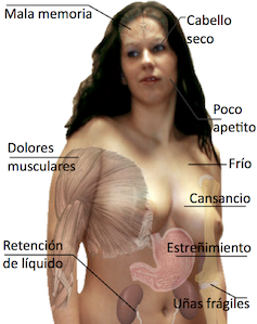 Hipotireoidismo1