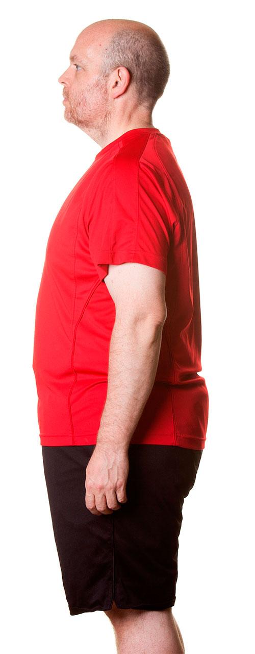 Metodo-endo-sleeve-despues