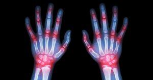 manos artritis1