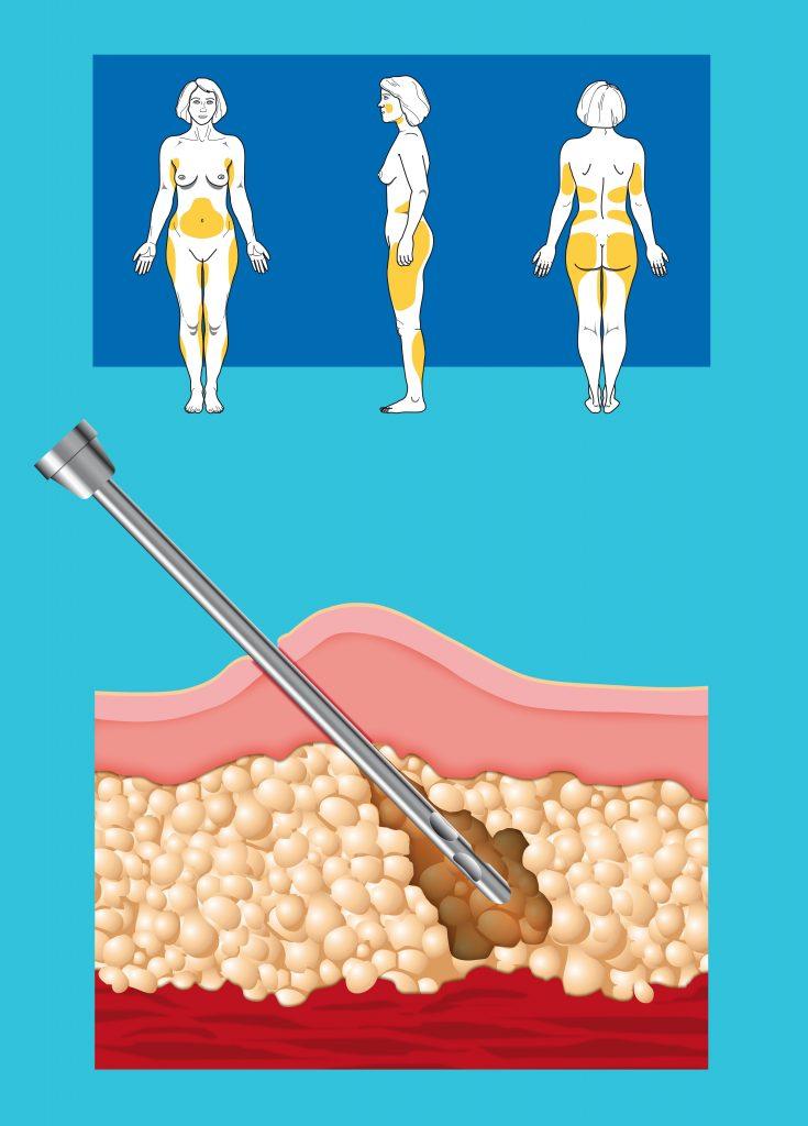 16455974_xxl-735x1024 Drenaje linfático post-liposucción